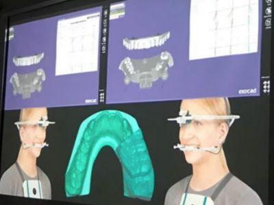 Diseño digital Clínico-Técnico con Exocad