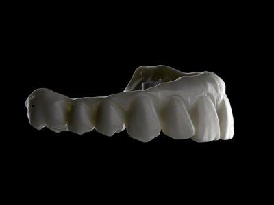 Presencial. Diseño Avanzado de Implantes con 3Shape