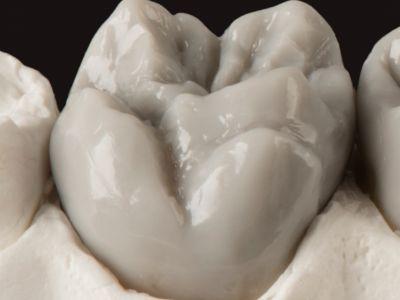 Taller demostrativo de morfología en un molar