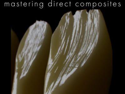 Mastering Direct Composites (English Edition)