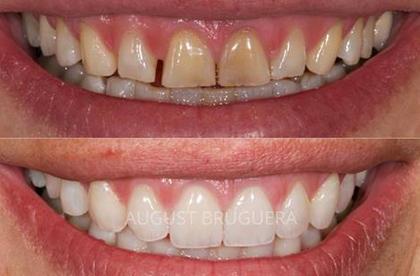 Rehabilitación dental